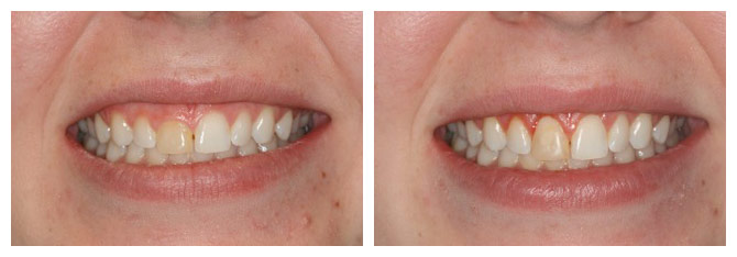 Crown lengthening, before (left) and after (right) treatment