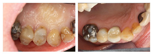 Crown lengthening before (left) and after (right)