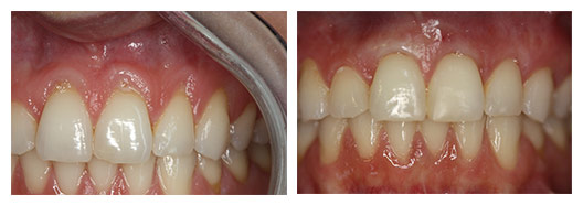 Gum graft before (left) and after (right)